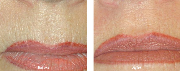 patient before and after treatment photos