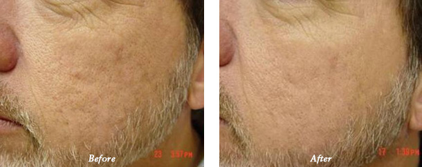 before and after treatment photo